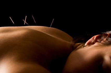 Акупунктура и массаж